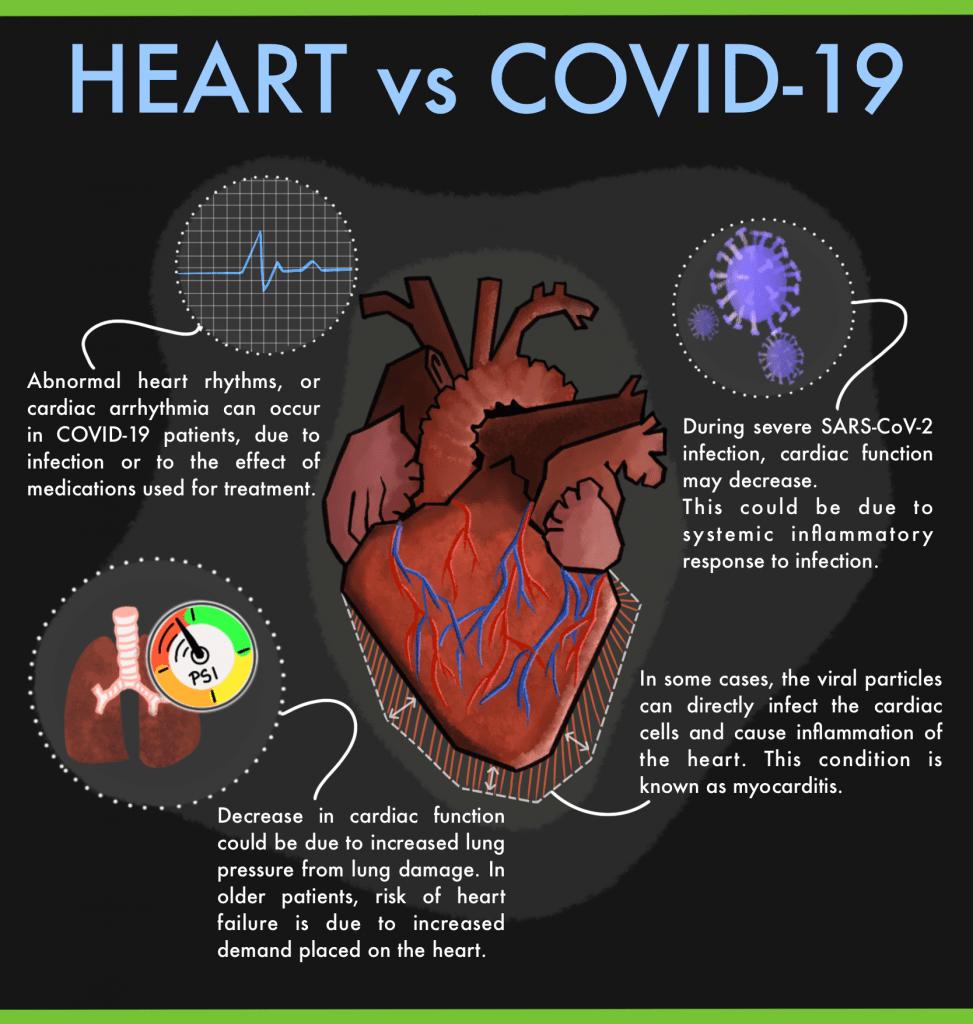 covid-19 myocarditis